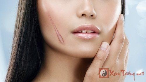 Những vết sẹo trên mặt báo hiệu vận đen